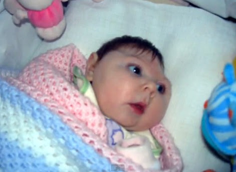 Microcephaly-baby.jpg
